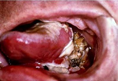 oral-cancer.png